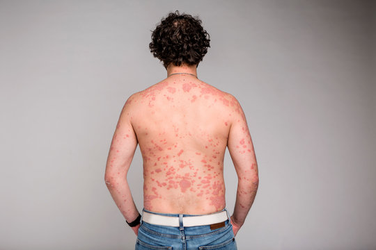 Psoriasis skin. Psoriasis is an autoimmune disease that affects the skin cause skin inflammation red and scaly