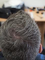 Gray hair on the man's head. Close-up head.