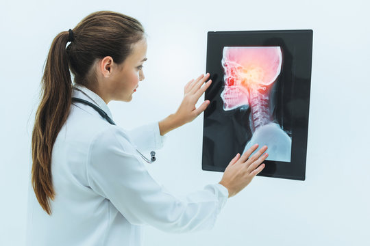 Female doctor working with x ray film of patient head and diagnose skull injury. Medical and healthcare staff service concept.