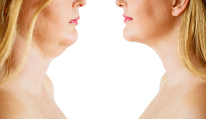Double chin fat or dewlap correction, before and after