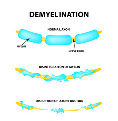The destruction of the myelin sheath on the axon. Damaged myelin. Neuron affected by multiple sclerosis. World Multiple Sclerosis Day. Infographics. Vector illustration on isolated background.