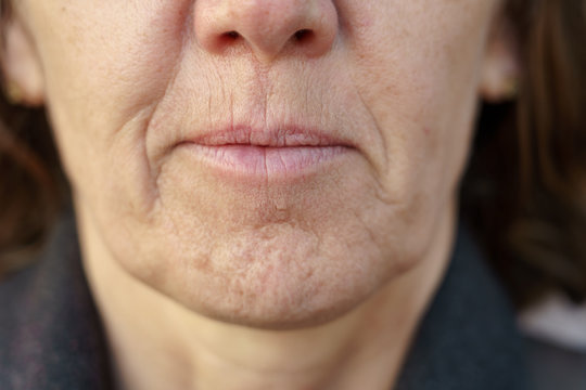 Close up detail of the chin of a middle-aged woman