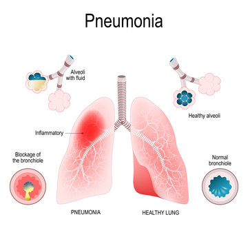 Pneumonia. Difference and Comparison of healthy lungs (bronchioles and alveoli) and pneumonia