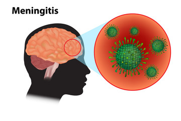 Meningitis - inflammation of the brain. Viral meningitis and encephalitis