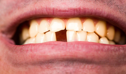 Yellow bad teeth. Man without one front tooth. No teeth. Smile men with a lost front tooth, toothache. Yellow teeth. Bad dental health, no teeth, no fluoride, tooth erosion