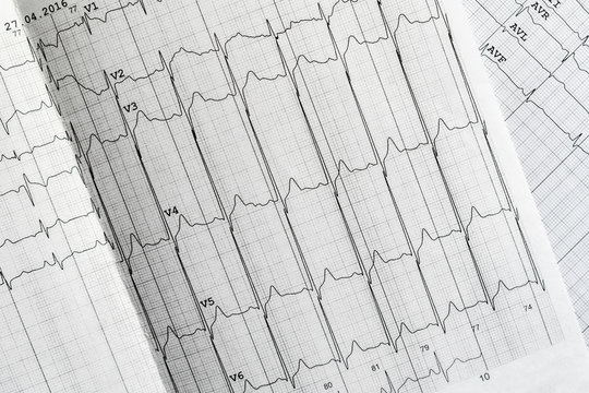 medical ecg analysis on paper concept, heart beat