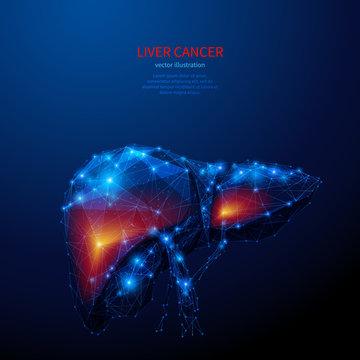 liver cancer low poly blue