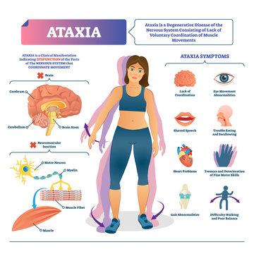 Ataxia vector illustration. Labeled medical movement brain disorder scheme.
