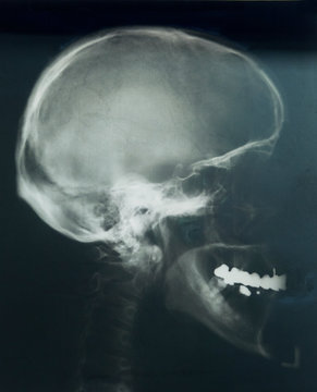 x-ray of the scull profile