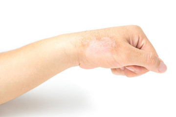 Men's hands are scratched because of itchy rashes caused by dermatitis. isolated on white background and clipping path.