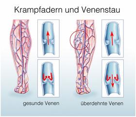 Krampfadern und Venenstau