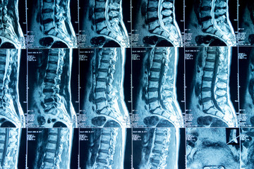 MRI scans of the lumbosacral spine