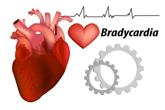Bradycardia.  Sinus bradycardia and Sick sinus syndrome