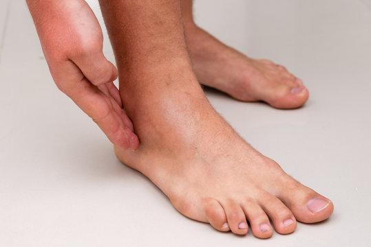 swollen leg after ankle sprain