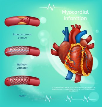 Banner Image Realistic Blood Vessels Human Heart