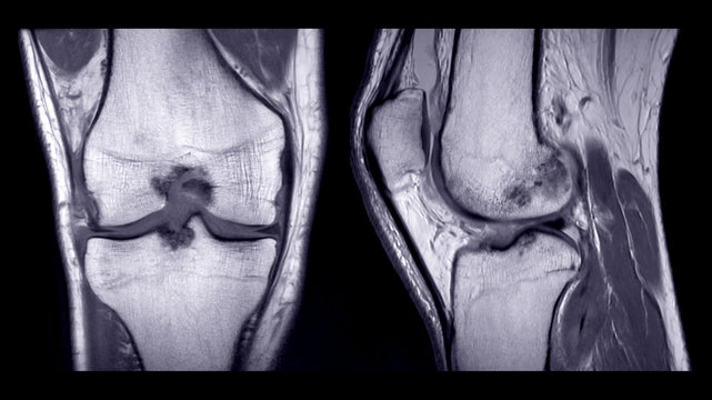 Magnetic resonance imaging or MRI of right knee comparison coronal and sagittal view.