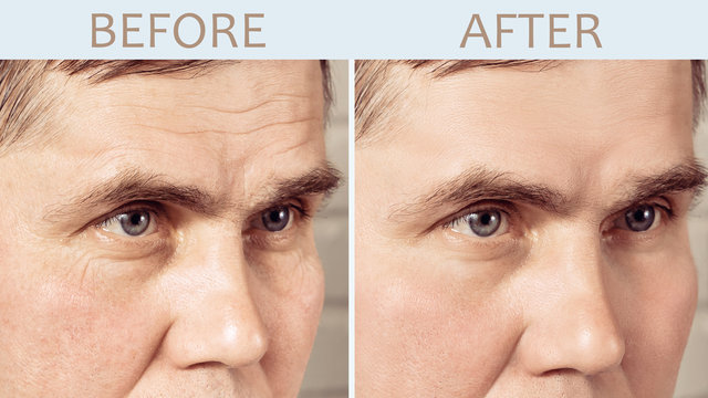 Face of a mature man before and after cosmetic rejuvenating procedures