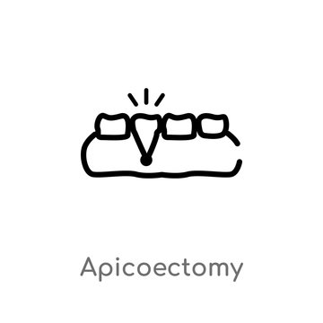 outline apicoectomy vector icon. isolated black simple line element illustration from dentist concept. editable vector stroke apicoectomy icon on white background