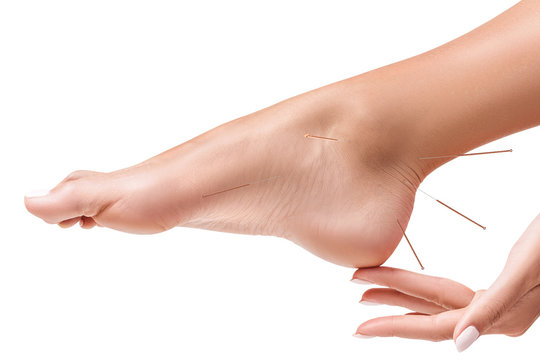 Female legs with insert acupuncture needles.