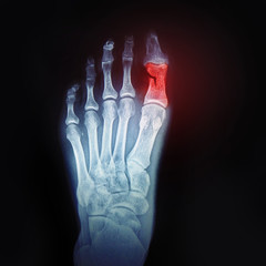 A broken toe. X-ray of the foot with the designation of the sore spot