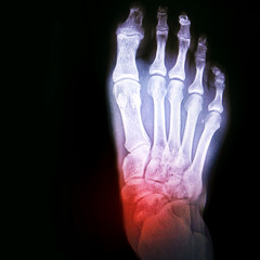 Dislocation of the ankle or arthritis of the joint. X-ray of the foot with the designation of the sore spot