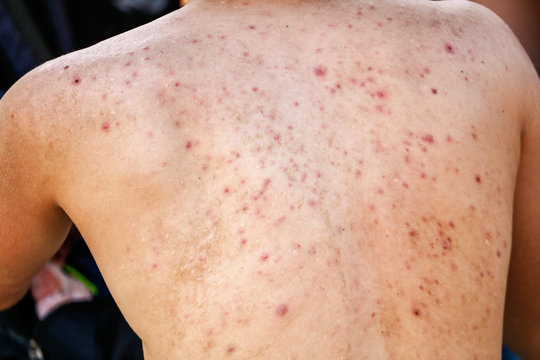 Man with acne on his back