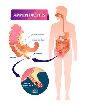 Appendicitis vector illustration. Labeled appendix inflammation pain scheme
