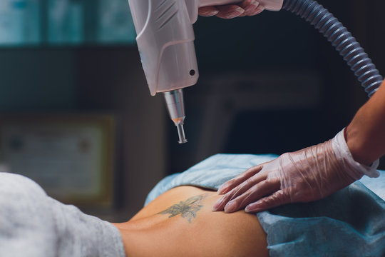 Cosmetologist with patient and professional tattoo removal laser in salon.