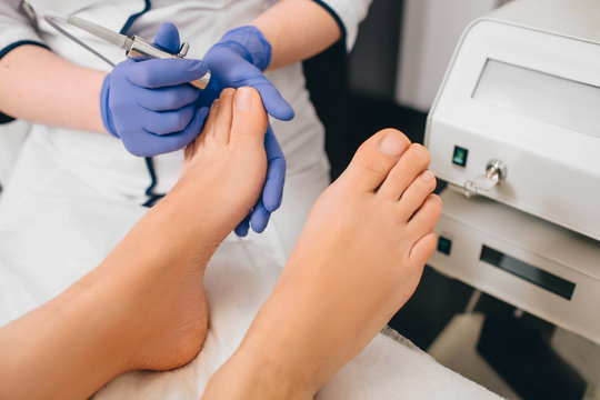 Patient receiving laser treatment on toenail, close-up. Fungal infection on the toenails. Onychomycosis treatment at clinic with medical laser