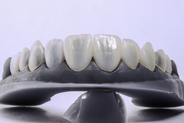 Close up of a dental model with veneers mounted on with dental tools isolated.