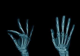 x-ray image hand and finger, action of hand and finger x-ray Image in blue tone on dark background