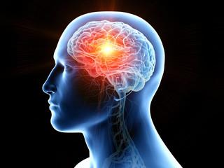 Fototapeta 3d rendered medically accurate illustration of human brain cancer obraz