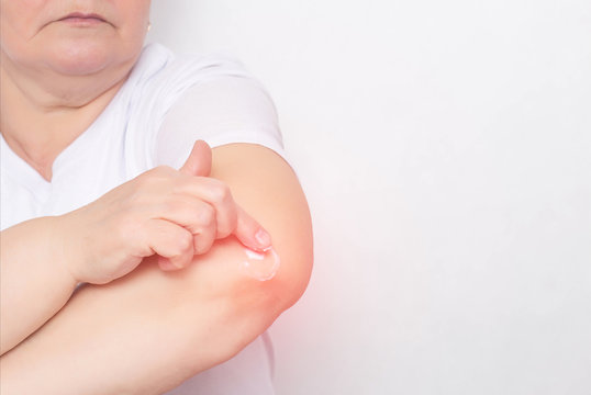 A woman rubs an anti-inflammatory treatment ointment into the elbow joint to relieve pain and inflammation, treatment of the elbow joint with a cream, chondrocalcinosis, copy space