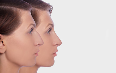 profile female before and after plastic surgery on her nose. Comparison of woman nose after plastic surgery