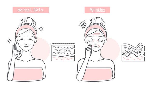 woman has wrinkles problem