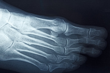 Detail of the x-ray of the bones of the human right foot