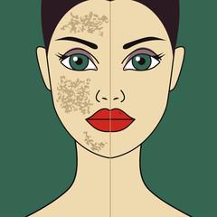 laser polishing of girls skin