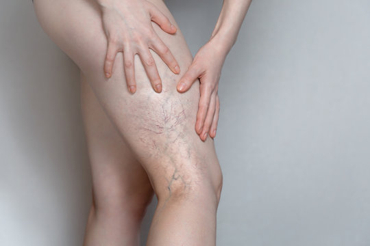 Woman shows leg with varicose veins. The concept of human health and disease. Gray background