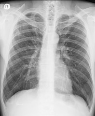 Chest X-ray. PA view. Lung fields with persistent pulmonary opacities.  Hemidiaphragms: sharp, and clearly delineated. Phrenicocostal sinuses are clear. Normal anatomy of pulmonary vessels.