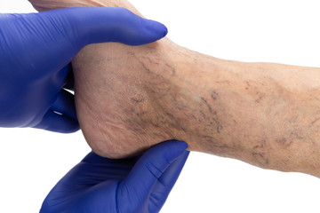 Doctor examining varicose veins on ankle