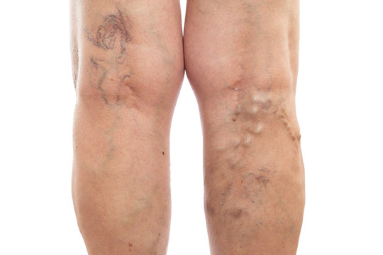 Legs with swollen veins and varicose