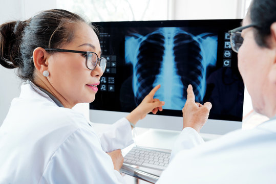 Radiologists discussing chest x-ray