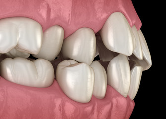 Abnormal teeth position, orthodontic concept. Medically accurate tooth 3D illustration