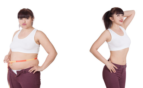 Comparison of women before and after weight loss. Diet and healthy nutrition. Liposuction results