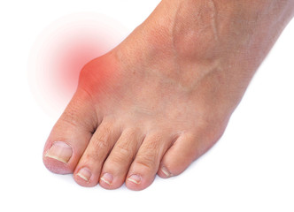Foot of a woman with painful Hallux Valgus