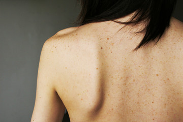 freckles and moles on the girl's back
