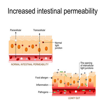 leaky gut. The opening of intercellular tight junctions (increased intestinal permeability)