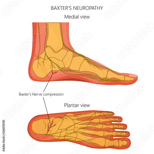 vector illustration, diagram of the baxter's neuropathy problem,  inflammation of the inferior calcaneal nerve  medial and plantar view of a  human foot