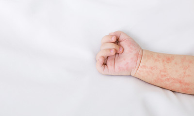 Hand of newborn baby with measles rash on white sheet