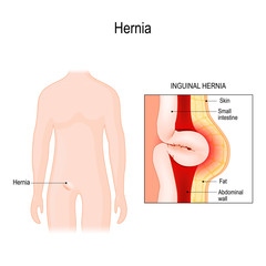 Inguinal Hernia. bowel exit through the wall of the abdomen cavity.